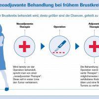 Neoadjuvantt und Adjuvante Therapie der Brusterkrankung